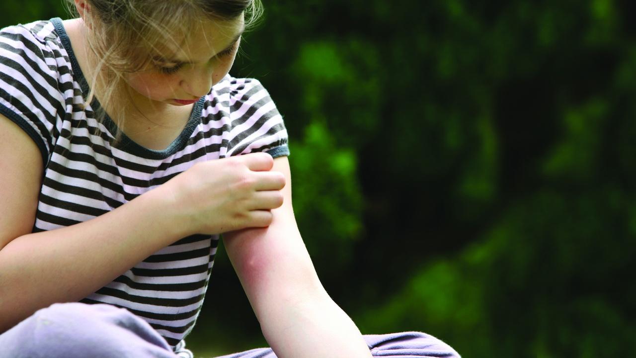 Последствия после укуса комара