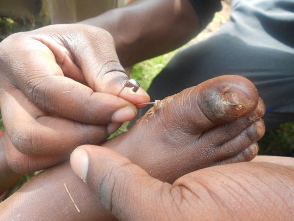 Земляная блоха вызывает кожное заболевание саркопсиллёз